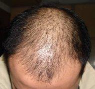 哪些原因导致脱发的