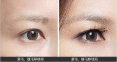 分析眉毛种植要多少钱