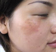 黄褐斑是由于什么原因导致的