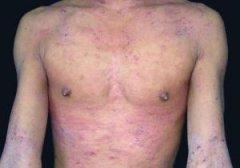 分析和了解皮炎的危害