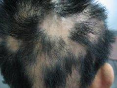 斑秃的治疗方式