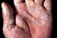 手癣的病因是什么?