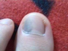 不慎得了灰指甲怎么办