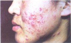 暗疮性痤疮的发病原因