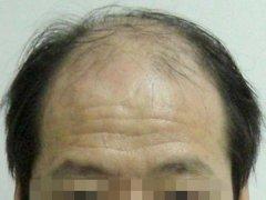 男性朋友患了脱发应该怎么办
