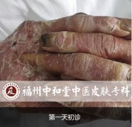 """2016世界银屑病日  福州中和堂""""银屑病抗复发专家门诊""""成立"""